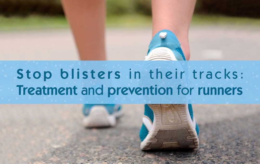 Stop blisters in their tracks: Treatment and prevention for runners
