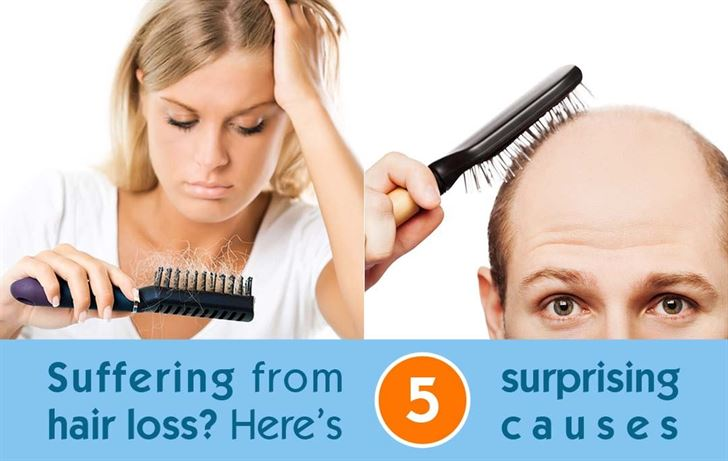 Suffering from hair loss? Here's 5 surprising causes